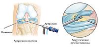 Артроскопия коленного сустава (памятка пациента)