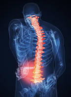 Лечение межпозвоночной грыжи и остеохондроза без операций восстановление позвоночника артрит, артроз, перелом