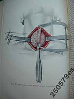 Петровский Б. Клиника и хирургическое лечение тиреотоксического зоба