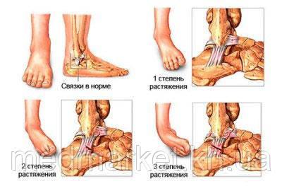 Как лечить растяжение связок голеностопного сустава