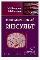 Парфенов В.А., Хасанова Д.Р. Ишемический инсульт