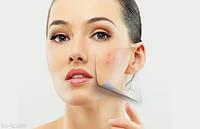 Косметика для жирной и проблемной кожи
