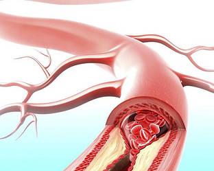 Padma Basic в борьбе с хроническим воспалением сосудов