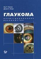 Чоплин Н.Т. Глаукома. Иллюстрированное руководство