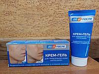 """До и После: крем-гель для проблемной кожи """"Анти-Акне"""" - радикальное средство для борьбы с угревой сыпью, 50 мл"""