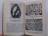 """Е.Мешалкин и др. """"Метаболизм и структура миокарда при врожденных пороках сердца"""", фото 6"""