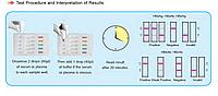 Швидкий тест для діагностики 4-інфекцій (ВІЛ, гепатит ВHBsAg, гепатит С, сифіліс), тест-картки(кров/сив/плазм)