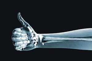 6 надежных способов сохранить кости здоровыми