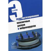 Чертков А.К. Эндопротезирование поясничных дисков в нейрохирургии