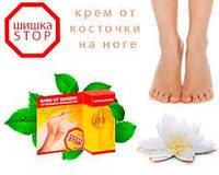 Шишка STOP крем от шишек на пальцах ног