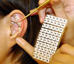 Аурикулотерапия или акупунктура уха.