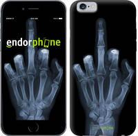 """Чехол на iPhone 6 Рука через рентген """"1007c-45-4848"""""""