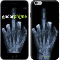 """Чехол на iPhone 6s Plus Рука через рентген """"1007c-91-4848"""""""