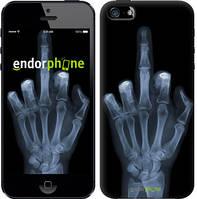 """Чехол на iPhone 5 Рука через рентген """"1007c-18-4848"""""""