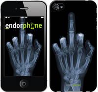 """Чехол на iPhone 4 Рука через рентген """"1007c-15-4848"""""""