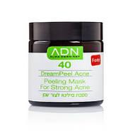 Dream Peel Acne 40 Forte - Пилинг для лица 40 Форте (pH 1.5), 120 мл