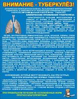 Стенд «Внимание, туберкулез»