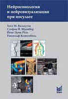 Вальдуэза Х.М. Нейросонология и нейровизуализация при инсульте