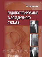 Загородний Н.В. Эндопротезирование тазобедренного сустава