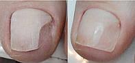 Протезирование (восстановление ногтей на ногах)