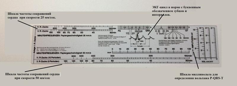 Кардиологическая линейка для анализа электрокардиограммы ( ЭКГ ), Германия