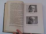 """Б.Поляк """"Военно-полевая офталмология (Боевые повреждения органа зрения)"""". 1953 год, фото 6"""