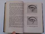 """Б.Поляк """"Военно-полевая офталмология (Боевые повреждения органа зрения)"""". 1953 год, фото 7"""