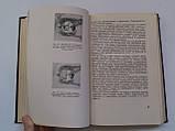 """Б.Поляк """"Военно-полевая офталмология (Боевые повреждения органа зрения)"""". 1953 год, фото 8"""