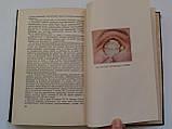 """Б.Поляк """"Военно-полевая офталмология (Боевые повреждения органа зрения)"""". 1953 год, фото 10"""
