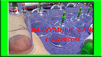 Вакуумные банки для лечебного массажа с насосом - 12 шт