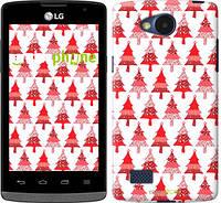 """Чехол на LG Joy H220 Christmas trees """"3856u-376-716"""""""