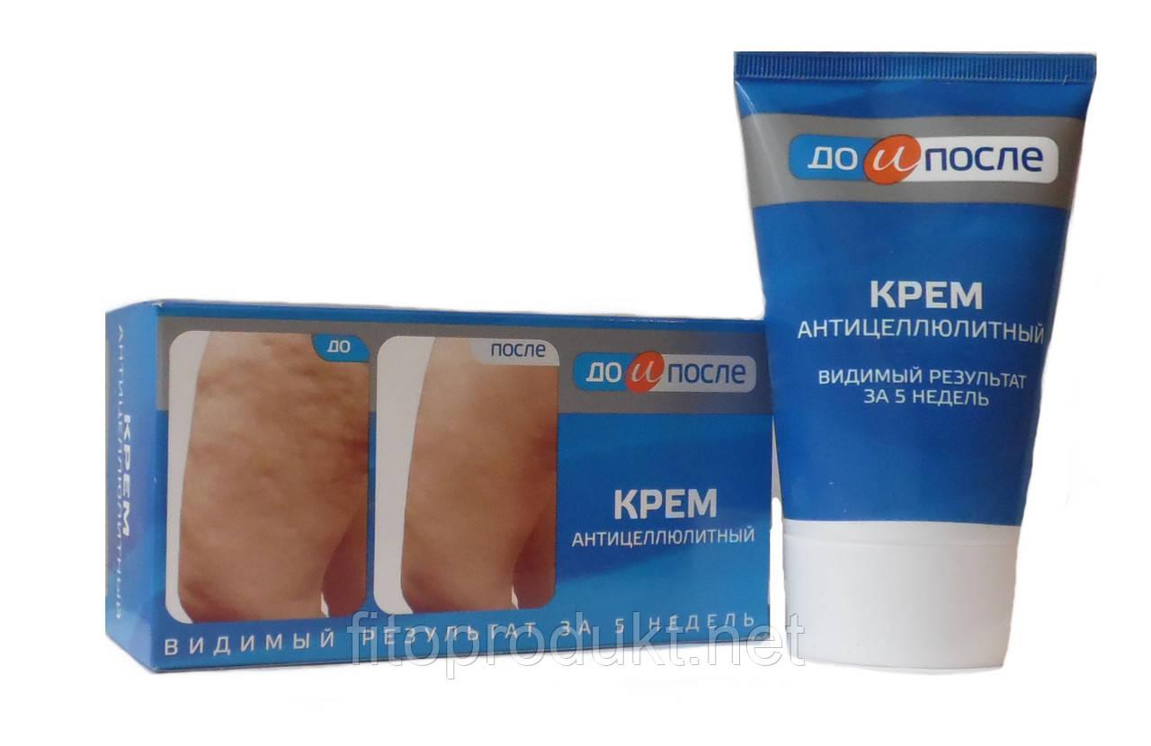 До и После Крем антицеллюлитный - результат за 5 недель, 100 мл