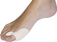 Лечение искривления пальца большой ноги халюс вальгус (Hallux Valgus)
