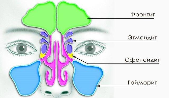 Схема захворювань носової порожнини. Малюнок 3.