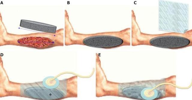ВАК Терапия - Инструкция по применению губчатой повязки Exsudex
