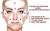 Мезороллер-дермароллер для обличчя і шкіри голови - ZGTS - 0,5, 1 ММ (ЗОЛОТЕ НАПИЛЕННЯ)., фото 4