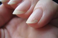 Что делать если слоятся ногти