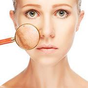 Средства при демодексе и куперозе
