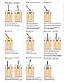 Набор для создания эндо доступа Set-1654 Endo Access Kit, фото 2