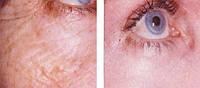 Поверхностно-срединный пилинг зоны вокруг глаз