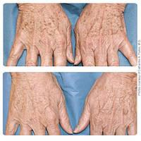 Пилинг для рук, фото 1