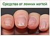 Ломкие ногти на руках что делать
