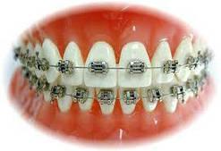 Инструменты для ортодонтии