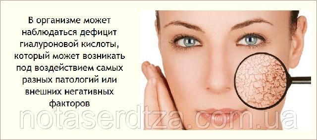 Появление дефицита гиалуроновой кислоты с возрастом на лице и теле