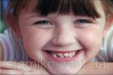 Цитрусы и конфеты приводят к стираемости зубов у детей