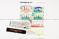 DENTAPREG Splint (Дентапрег Сплинт) шинирующая стекловолоконная лента