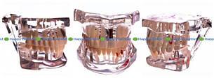 Демонстрационная модель зубов с патологиями (стоматологическая)