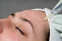 Мезотерапія обличчя та тіла